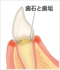 歯石と歯垢