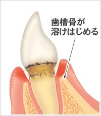 歯槽骨が溶けはじめる