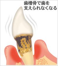 歯槽骨で骨を支えられなくなる
